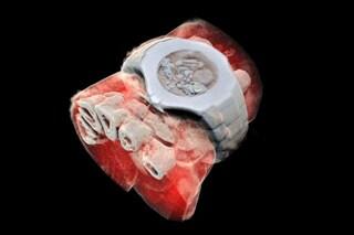 Prima radiografia 3D a colori: rivoluzione nelle diagnosi