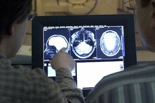 Il coronavirus riduce la materia grigia nel cervello, anche nei pazienti colpiti dalla Covid lieve