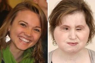 Trapianto di faccia dopo tentato suicidio: Katie sorride dopo 31 ore di operazione