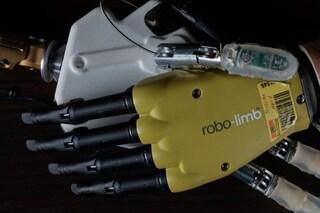 Mano robotica rivoluzionaria impiantata a due donne italiane: imita il tatto delle vere dita