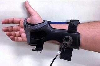 """Diabete, addio punture dolorose: arriva il """"guanto"""" che misura la glicemia con un laser"""