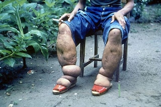 Cos'è la filariosi linfatica, la malattia trasmessa dalle zanzare che deforma arti e genitali