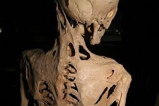 Fibrodisplasia ossificante progressiva, la rarissima malattia che trasforma i muscoli in ossa