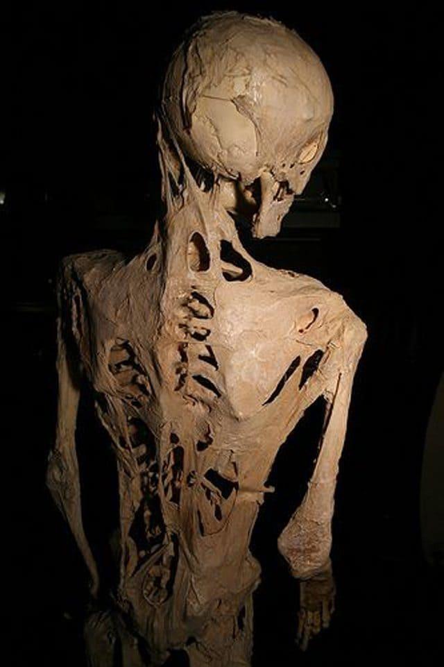 Lo scheletro di un paziente affetto da FOP