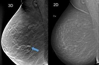 Cancro al seno, tomosintesi 3D rileva il 34% di tumori in più della mammografia tradizionale