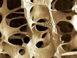 Osteoporosi, si previene prendendo il sole: le bufale più assurde sulla malattia delle ossa