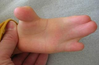 Cos'è la sindrome di Apert, la rara malattia genetica che fonde le dita e deforma il cranio