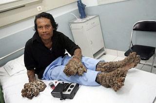 """Epidermodisplasia verruciforme, la rara malattia che trasforma la pelle in """"corteccia"""""""