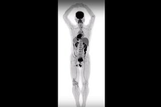 Scanner medico analizza l'intero corpo con qualità senza precedenti: rivoluzione in medicina