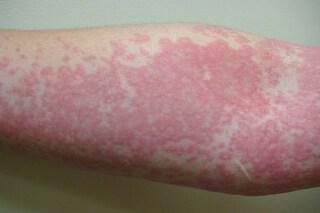 """Orticaria acquagenica, l'""""allergia"""" all'acqua che provoca pomfi, prurito e pelle arrossata"""