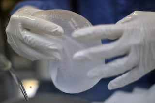 Quello che hanno cercato di nasconderci sulle protesi al seno: cancro e malattie autoimmuni