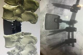 Vertebra stampata in 3D impiantata a Pisa: prima volta in Toscana, è un record