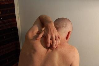 Parassitosi delirante, la rara sindrome che fa vedere e sentire vermi e insetti sulla pelle