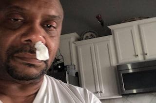 Gli cola il naso da 5 anni, ma non è raffreddore: l'uomo perde liquido cerebrospinale