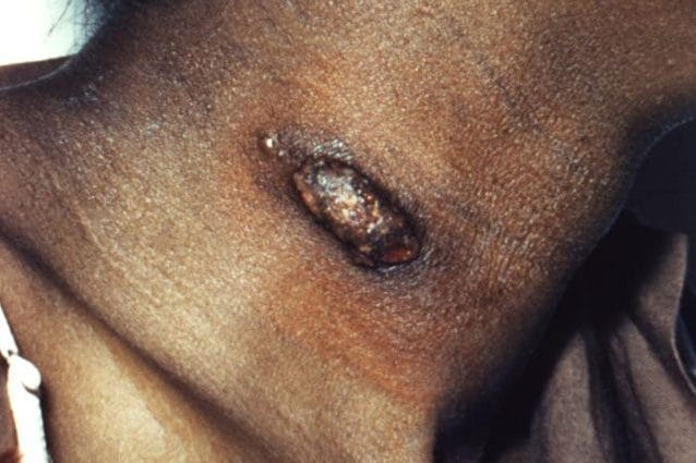 Lesione da coccidiomicosi. Credit: CDC/ Dr. Lucille K. Georg