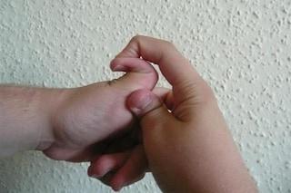 """Sindrome di Ehlers-Danlos, cos'è la rara condizione genetica che rende le dita di """"gomma"""""""