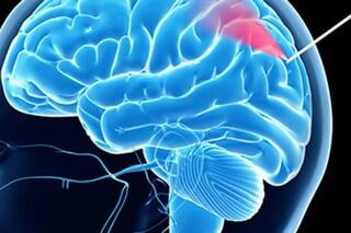 """Cancro al cervello, biopsia più sicura grazie a questo super ago: """"vede"""" i vasi sanguigni"""