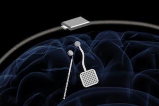 Parkinson ed epilessia, pacemaker senza fili per cervello previene crisi e tremori