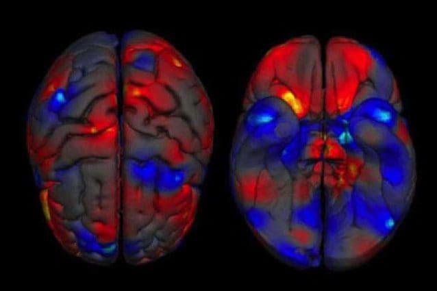 Il cervello femminile invecchia più lentamente