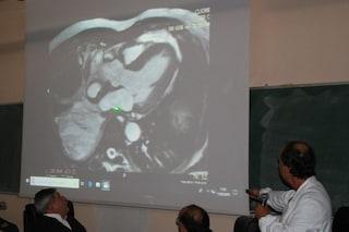 Prima volta in Italia, cuore umano ricostruito con pericardio di bue: rimosso anche il tumore
