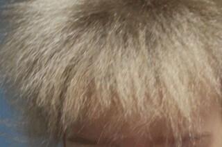 Sindrome dei capelli impettinabili, la rara malattia che rende la chioma crespa e 'ribelle'