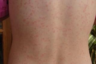 Scarlattina, la malattia infettiva delle macchioline rossastre: sintomi, cura e prevenzione