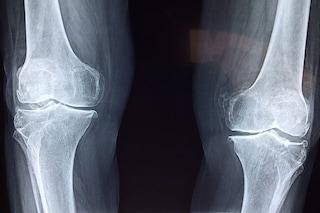 Primo impianto al mondo di protesi totale del ginocchio stampata in 3D realizzato a Milano