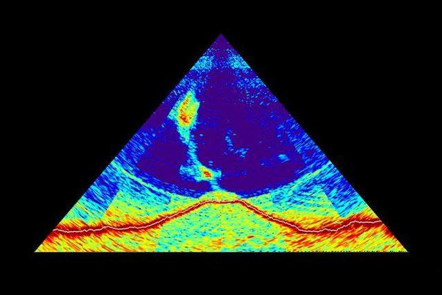 L'immagine ottenuta dal sonar del vulcano. Credit: MAYOBS – CNRS / IPGP / IFREMER / BRGM