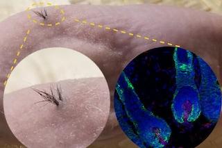 Calvizie: capelli creati in laboratorio da cellule staminali pluripotenti indotte umane
