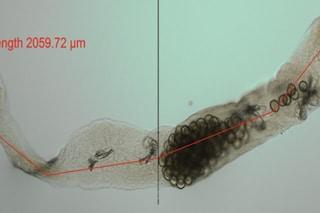 Epidemia di Echinococcosi alveolare, nuova infezione causata da verme piatto si sta spostando