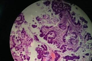 Cancro, modello matematico riesce a prevedere presenza di metastasi non rilevabili