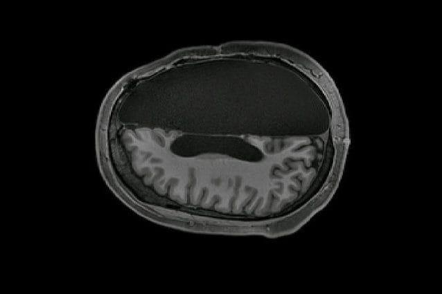 La scansione della testa di una persona con metà cervello. Credit: Caltech Brain Imaging Center
