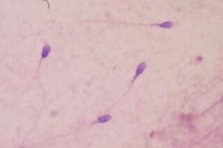 """Infertilità maschile inspiegabile, svelata la causa: DNA spermatozoi resta """"intrappolato"""""""