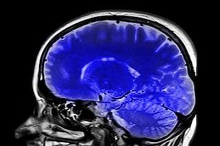I danni al cervello da Covid-19 sono molto simili a quelli dell'Alzheimer