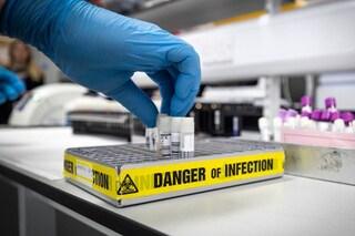 Coronavirus, a cosa serve il test per gli anticorpi e che differenza c'è col tampone