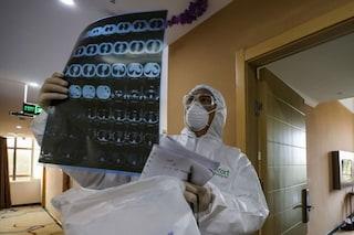 Possibili danni ai polmoni permanenti per il 30% dei pazienti guariti dal coronavirus