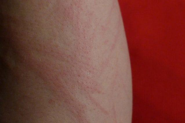 Un'eruzione cutanea sul braccio