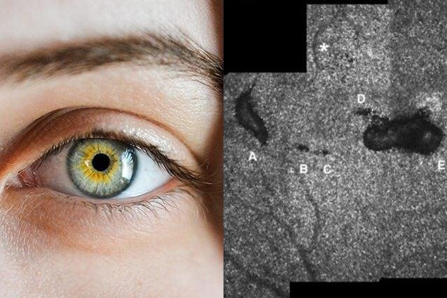 A destra, le lesioni causate dal laser – visibili come macchine nere – sulla retina del giovane. Credit: Wolters Kluwer Health, Inc.