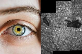 """Si procura danni permanenti agli occhi guardando puntatore laser """"giocattolo"""" per animali domestici"""