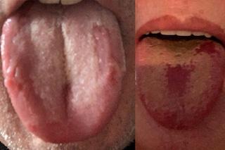 Cos'è e come si riconosce la lingua COVID, il nuovo sintomo dell'infezione da coronavirus