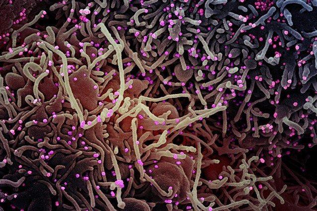 Particelle virali del coronavirus su cellule in coltura. Credit: NIAID