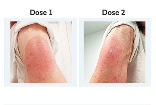 Reazioni cutanee ritardate al vaccino di Moderna / NEJM