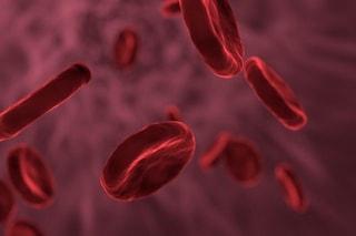 I casi di trombosi della vena sinusale che stanno frenando il vaccino AstraZeneca