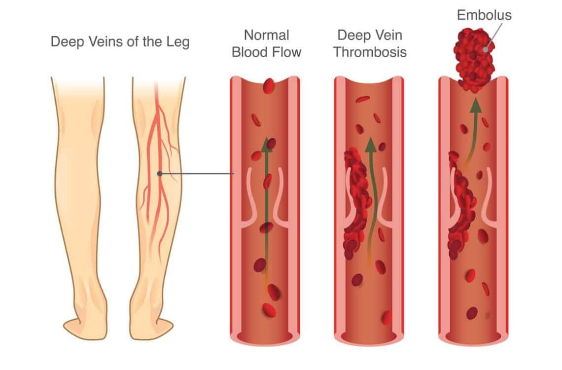 Come si sviluppa una trombosi