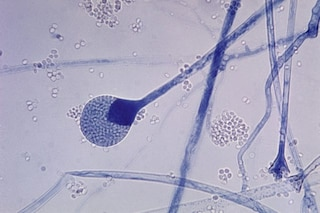 """Un """"fungo nero"""" potenzialmente letale sta colpendo i pazienti Covid in India: cos'è la mucormicosi"""