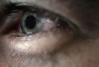 Un paziente cieco ha recuperato parzialmente la vista grazie a una terapia sperimentale