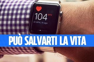 Apple Watch e intelligenza artificiale potrebbero prevenire infarti e ictus
