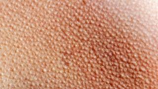 Facebook vuole farci inviare messaggi attraverso la pelle