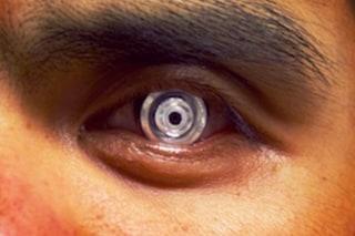 Le lenti a contatto del futuro avranno lo zoom (che si attiverà sbattendo le palpebre)