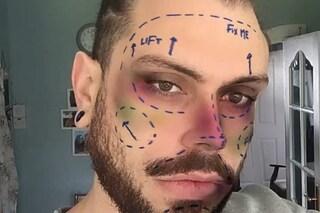 Instagram sta eliminando i filtri che promuovono la chirurgia estetica